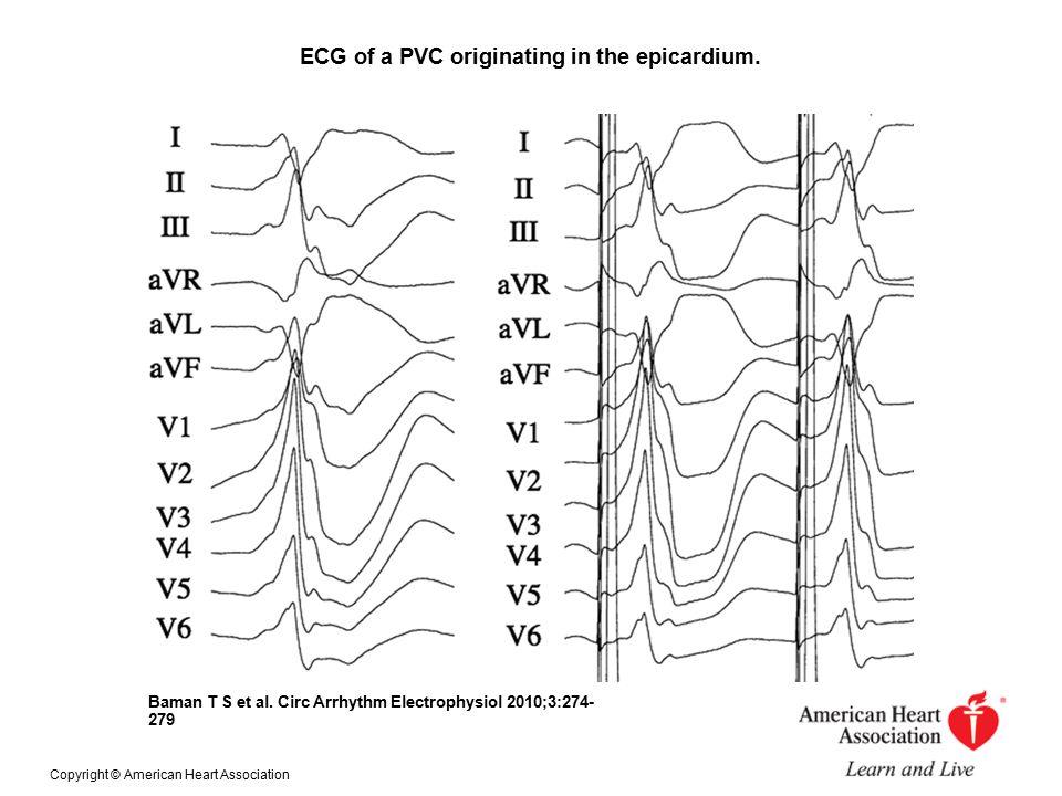 ECG of a PVC originating in the epicardium. Baman T S et al.