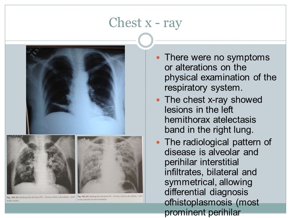 TC de tórax Chest tomography revealed a discreet bilateral pleural apical thickening.