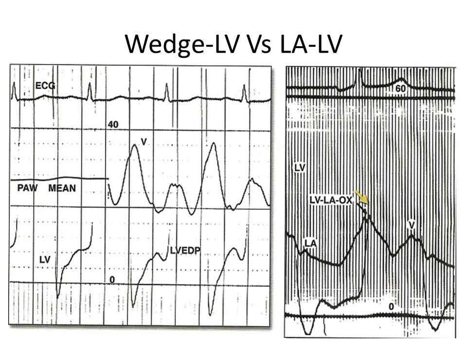 Wedge-LV Vs LA-LV