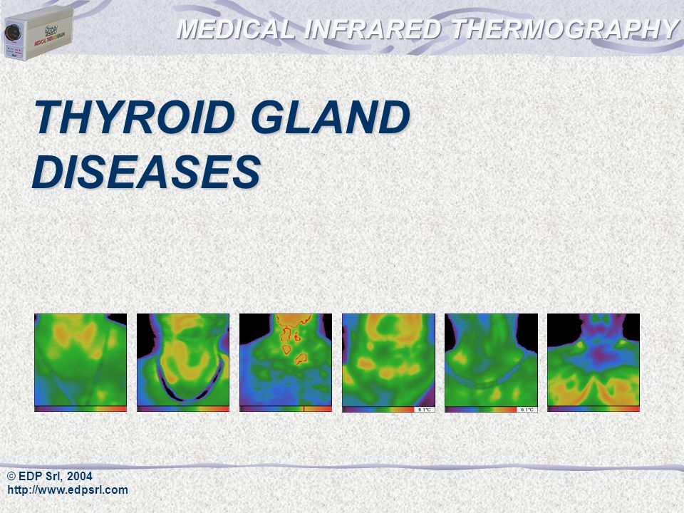 © EDP Srl, 2004 http://www.edpsrl.com THYROID GLAND DISEASES