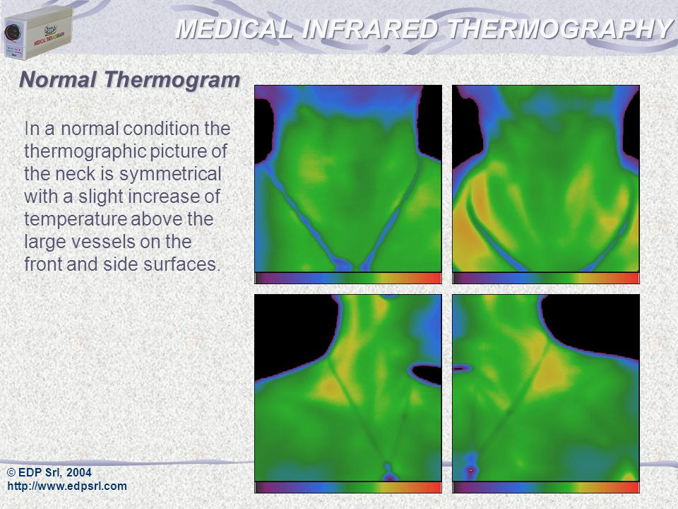 © EDP Srl, 2004 http://www.edpsrl.com In a normal condition the thermographic picture of the neck is symmetrical with a slight increase of temperature above the large vessels on the front and side surfaces.