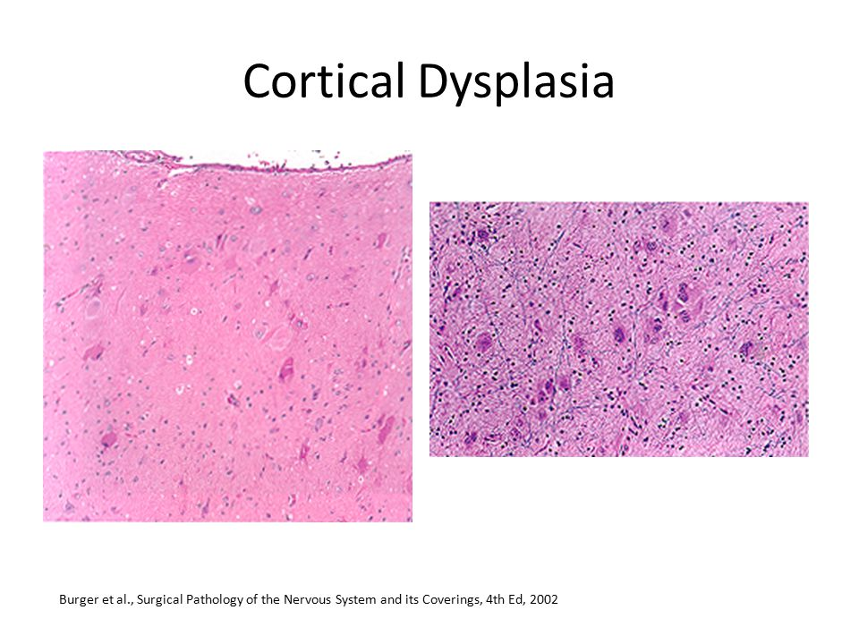 Cortical Dysplasia Burger et al., Surgical Pathology of the Nervous System and its Coverings, 4th Ed, 2002