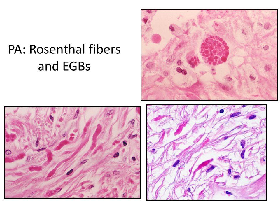 PA: Rosenthal fibers and EGBs