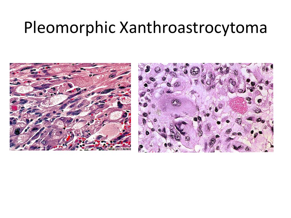 Pleomorphic Xanthroastrocytoma