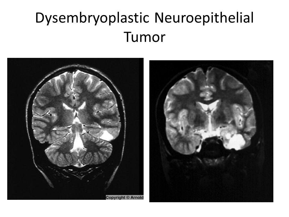 Dysembryoplastic Neuroepithelial Tumor