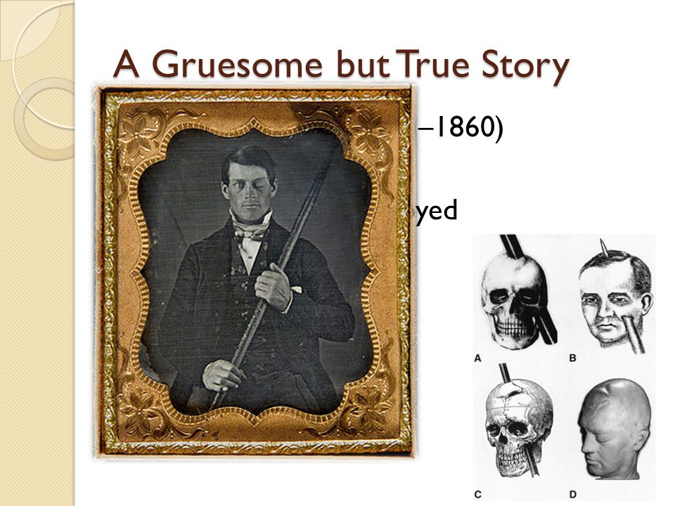 A Gruesome but True Story Phineas P. Gage (1823 –1860) construction foreman left frontal lobe destroyed effects ?