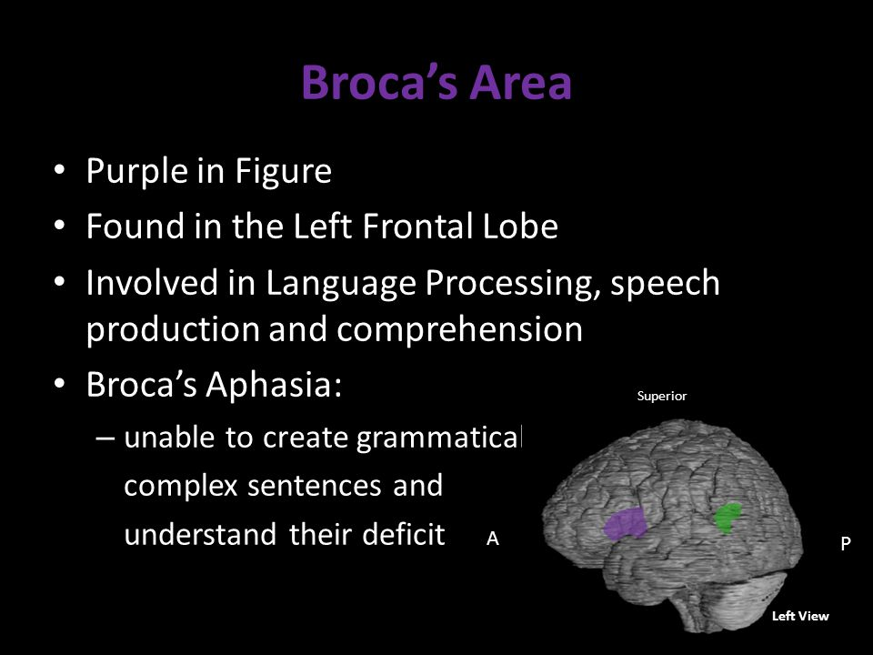 Broca's Area Purple in Figure Found in the Left Frontal Lobe Involved in Language Processing, speech production and comprehension Broca's Aphasia: – unable to create grammatically complex sentences and understand their deficit Left View A P Superior