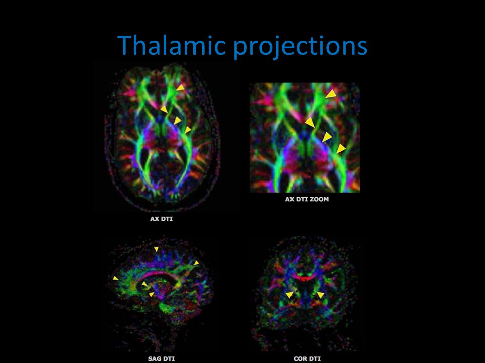 Thalamic projections