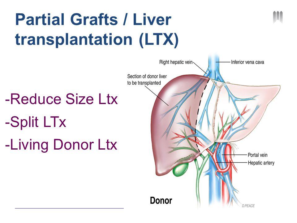 Partial Grafts / Liver transplantation (LTX) -Reduce Size Ltx -Split LTx -Living Donor Ltx