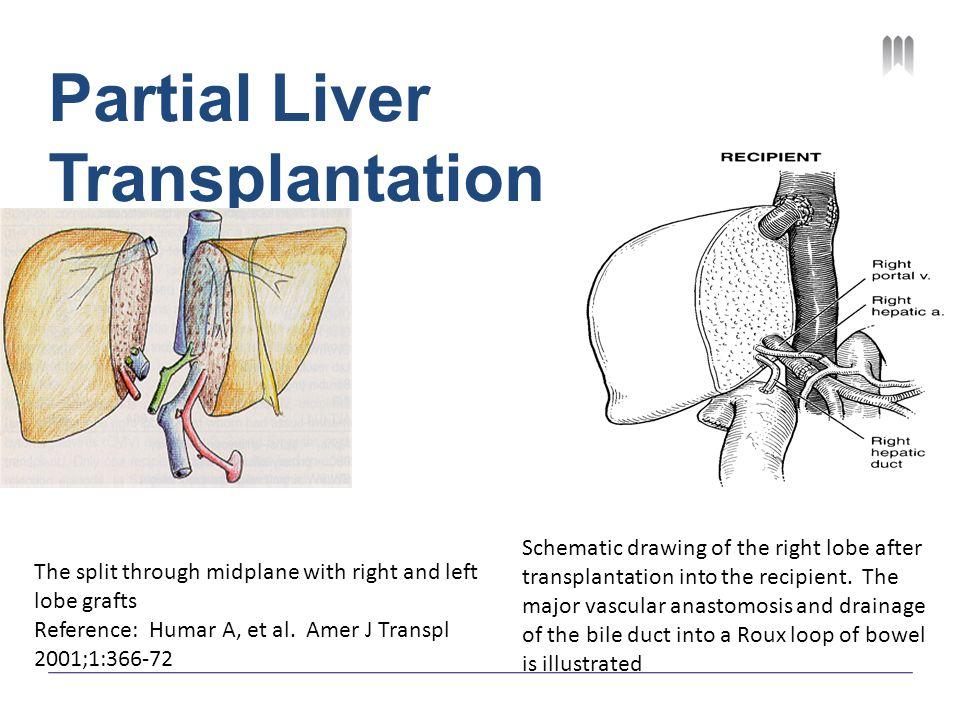 Partial Liver Transplantation The split through midplane with right and left lobe grafts Reference: Humar A, et al. Amer J Transpl 2001;1:366-72 Schem