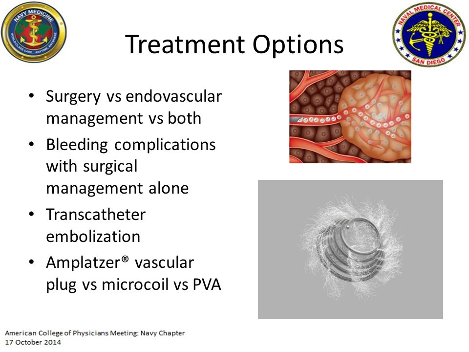 Treatment Options Surgery vs endovascular management vs both Bleeding complications with surgical management alone Transcatheter embolization Amplatzer® vascular plug vs microcoil vs PVA