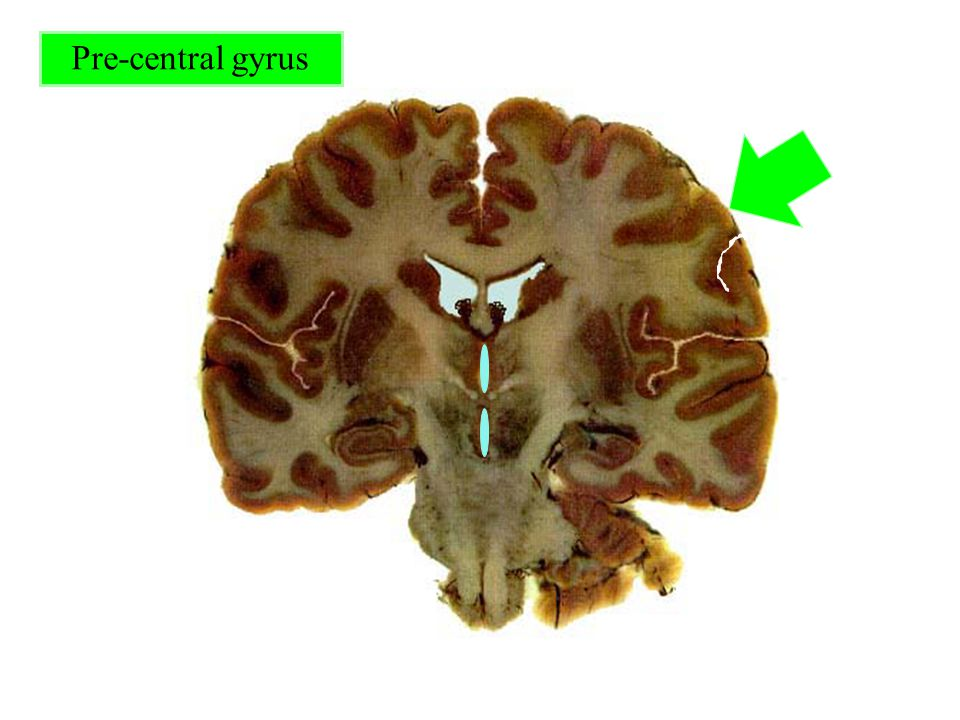 Pre-central gyrus