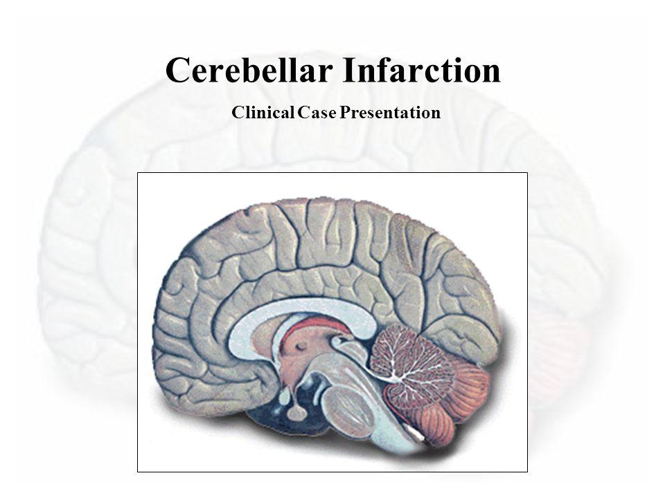 Cerebellar Infarction Clinical Case Presentation
