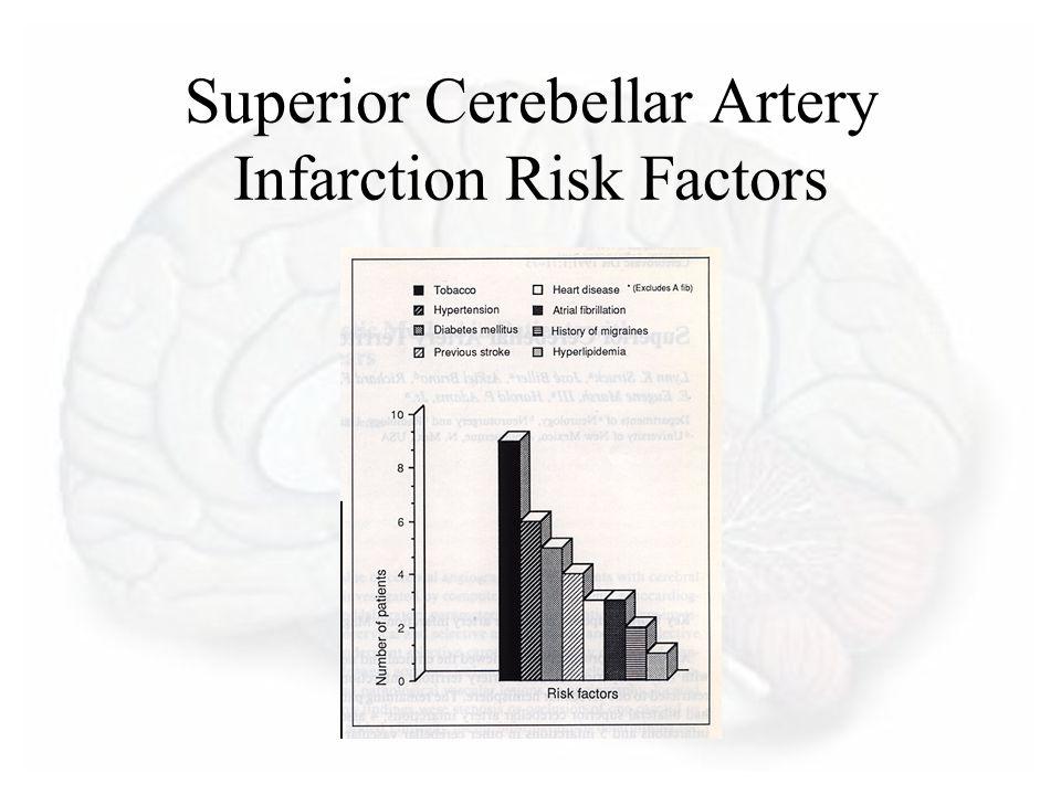 Superior Cerebellar Artery Infarction Risk Factors