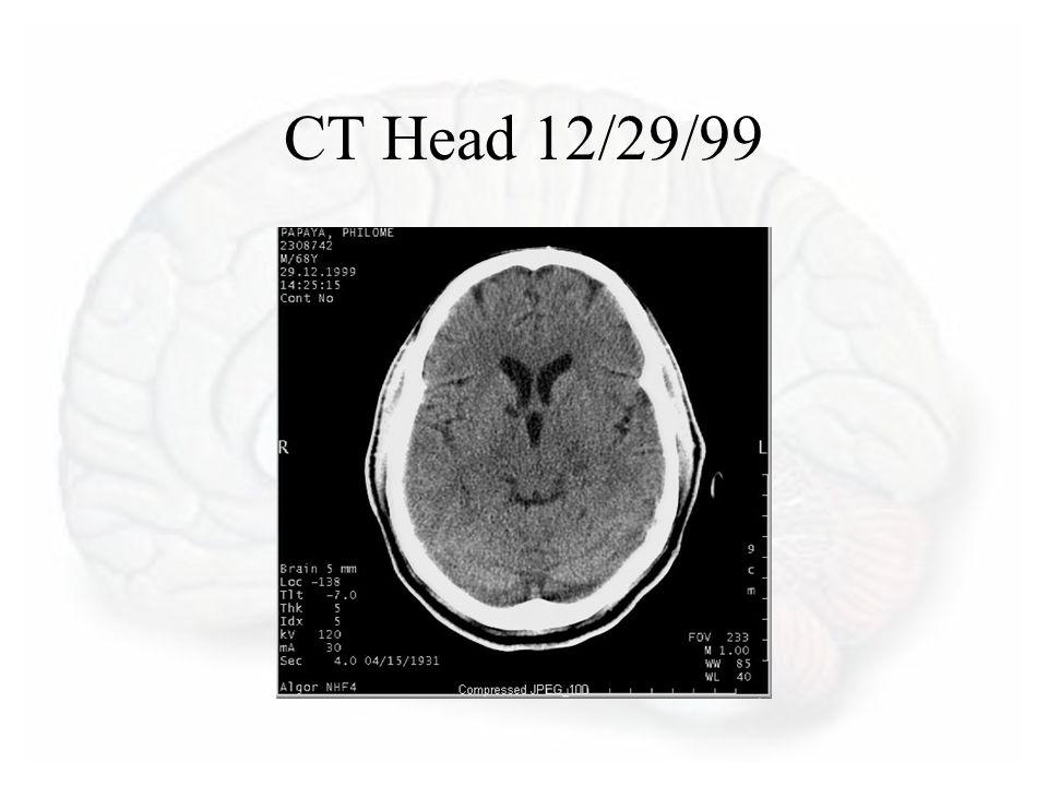 CT Head 12/29/99