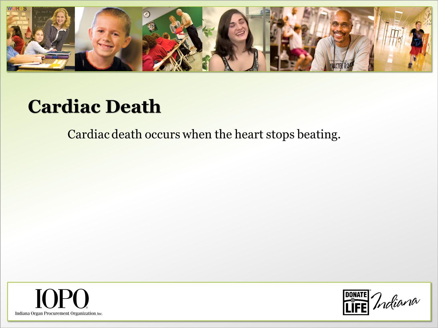 Cardiac Death Cardiac death occurs when the heart stops beating.