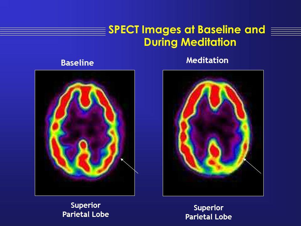 Superior Parietal Lobe Superior Parietal Lobe Baseline Meditation SPECT Images at Baseline and During Meditation