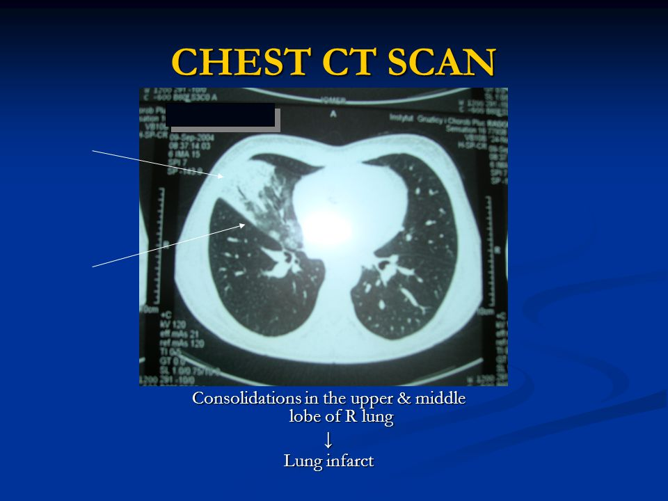 CHEST CT SCAN Consolidations in the upper & middle lobe of R lung ↓ Lung infarct