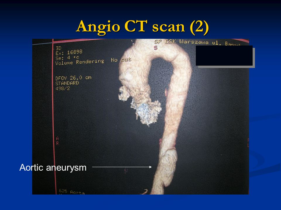 Angio CT scan (2) Angio CT scan (2) Aortic aneurysm