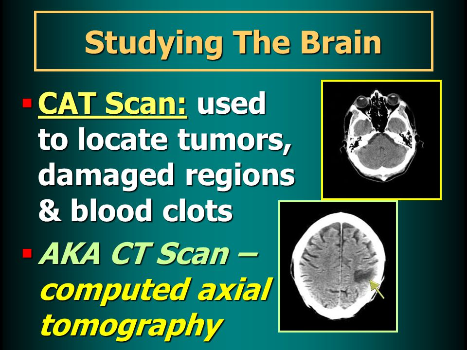 Studying The Brain  CAT Scan: used to locate tumors, damaged regions & blood clots  AKA CT Scan – computed axial tomography