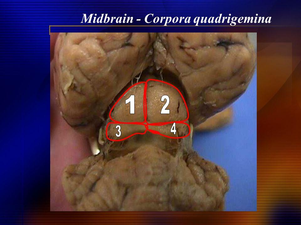 Midbrain - Corpora quadrigemina