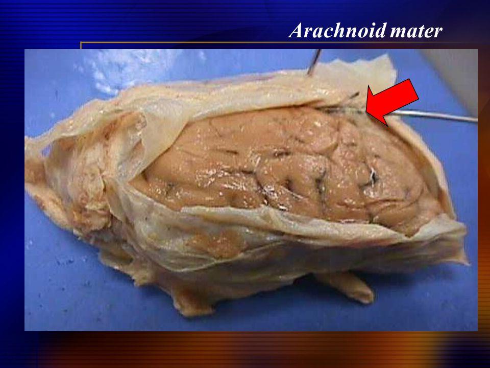 Arachnoid mater