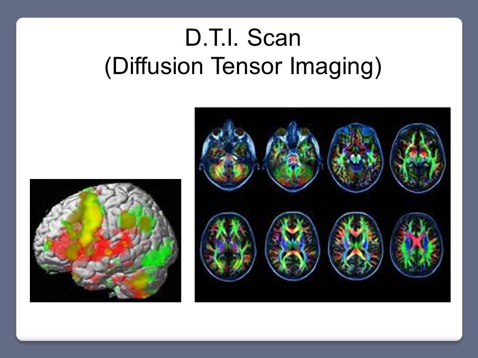 D.T.I. Scan (Diffusion Tensor Imaging)