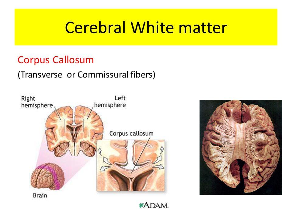 Corpus Callosum (Transverse or Commissural fibers) Cerebral White matter