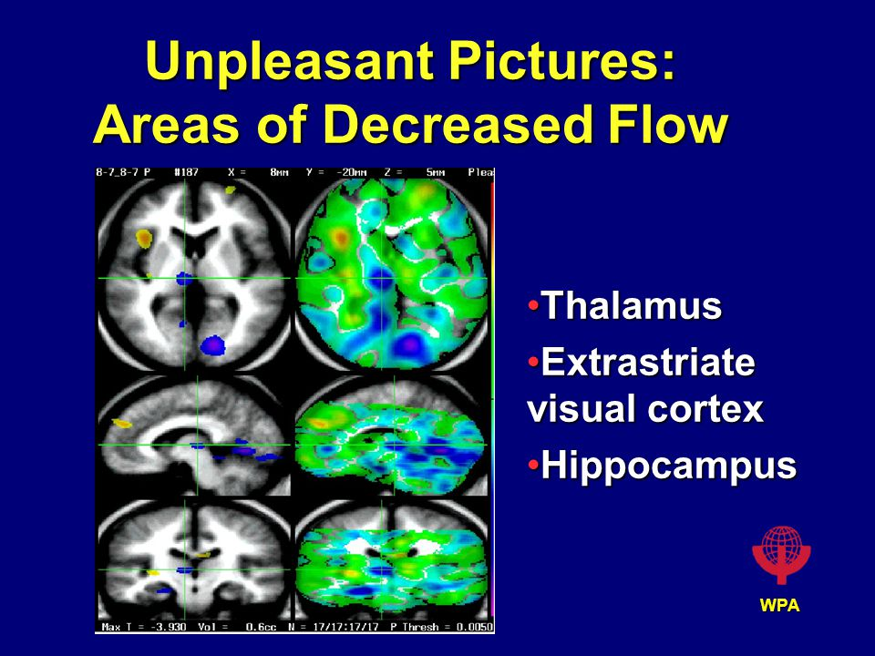 WPA Unpleasant Pictures: Areas of Decreased Flow ThalamusThalamus Extrastriate visual cortexExtrastriate visual cortex HippocampusHippocampus