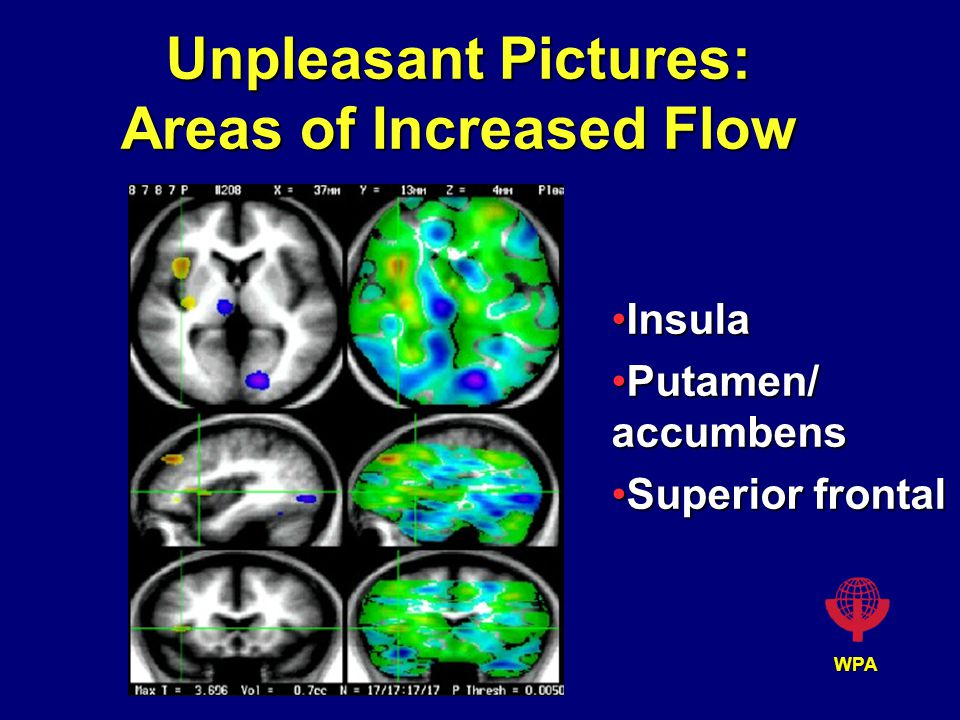 WPA Unpleasant Pictures: Areas of Increased Flow InsulaInsula Putamen/ accumbensPutamen/ accumbens Superior frontalSuperior frontal