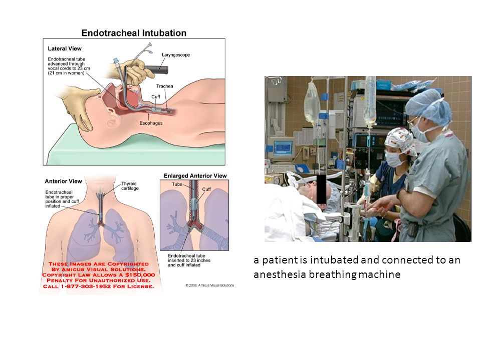 a patient is intubated and connected to an anesthesia breathing machine