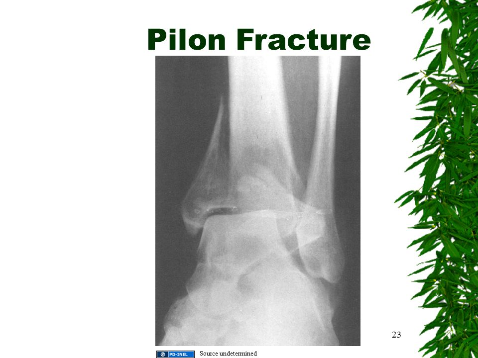 Pilon Fracture 23 Source undetermined