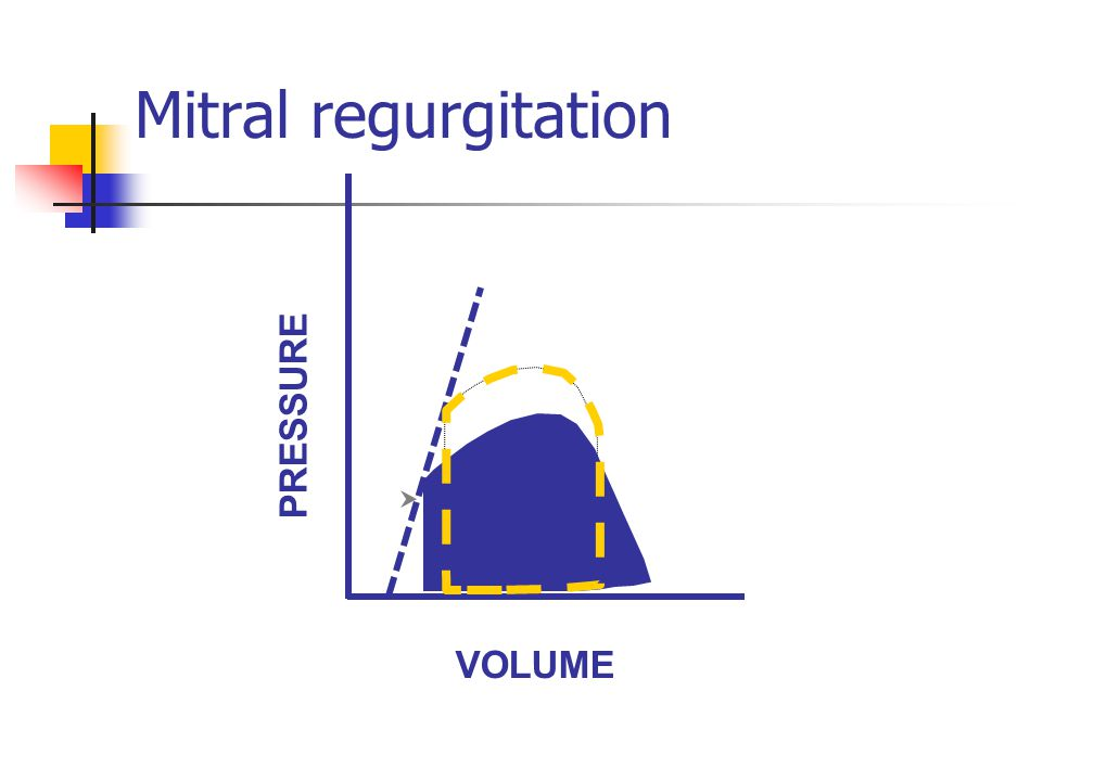 Mitral regurgitation VOLUME PRESSURE