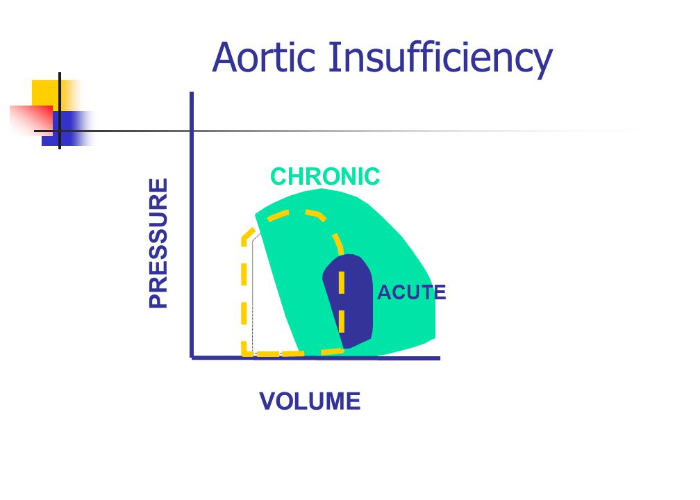 Aortic Insufficiency VOLUME PRESSURE ACUTE CHRONIC