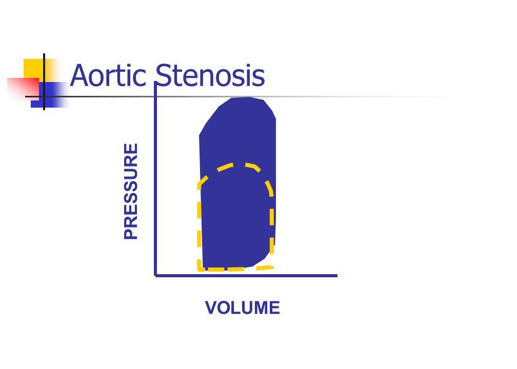 Aortic Stenosis VOLUME PRESSURE