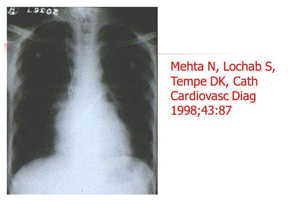 Mehta N, Lochab S, Tempe DK, Cath Cardiovasc Diag 1998;43:87