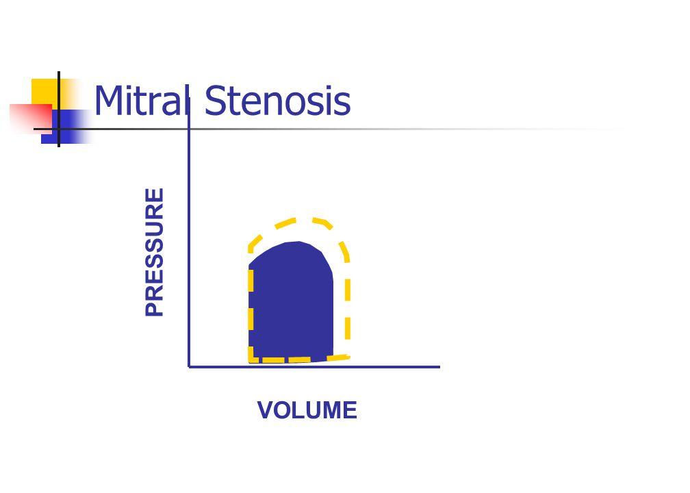 Mitral Stenosis VOLUME PRESSURE