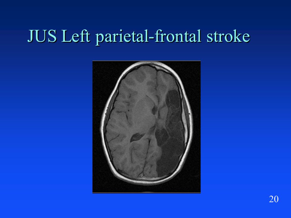 20 JUS Left parietal-frontal stroke