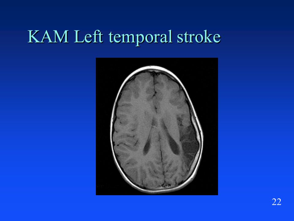22 KAM Left temporal stroke