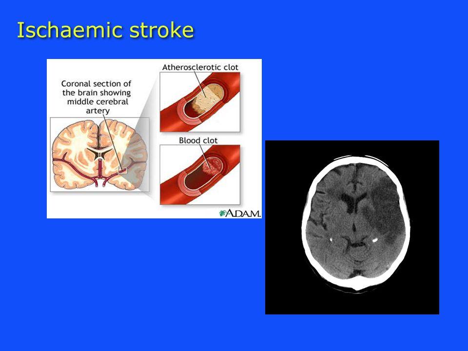 Ischaemic stroke