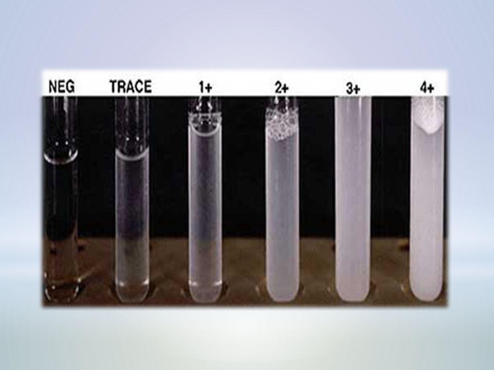 Bence Jones protein Bence Jones protein is a monoclonal globulin protein.