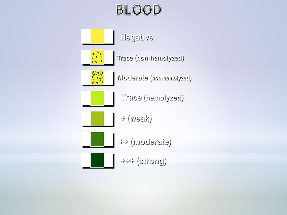 BILIRUBIN AND UROBILINOGEN:- Bilirubin is formed from the breakdown of hemoglobin in the reticuloendothelial system.