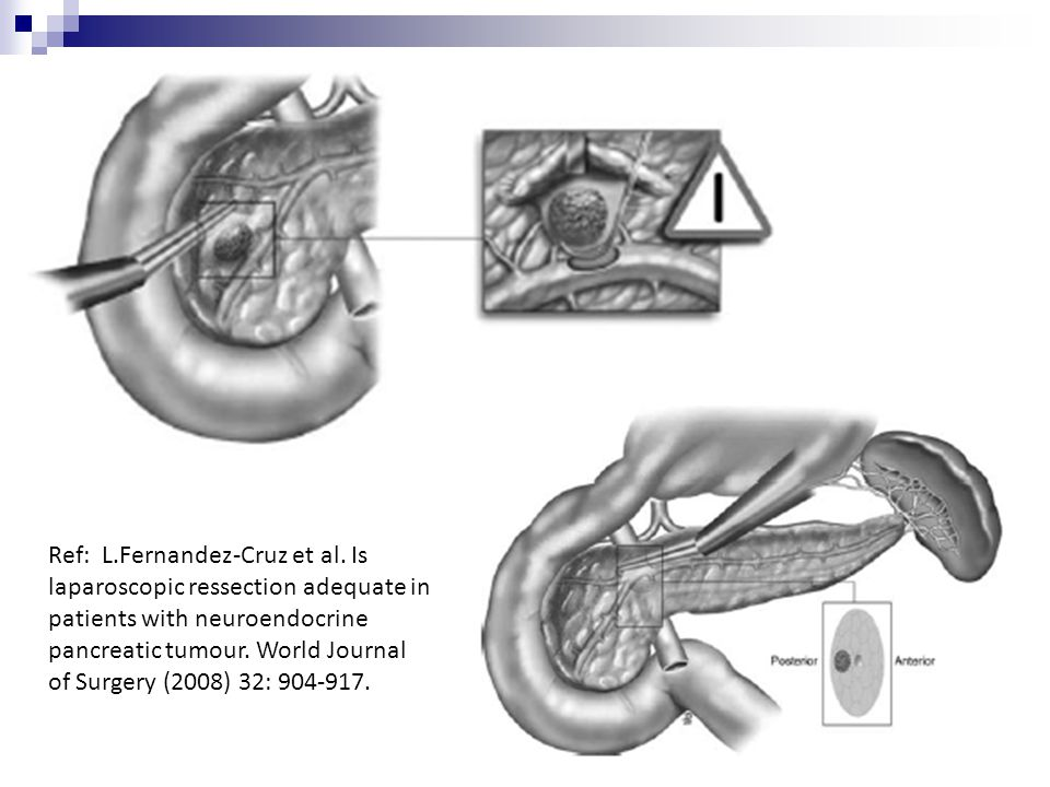 Ref: L.Fernandez-Cruz et al. Is laparoscopic ressection adequate in patients with neuroendocrine pancreatic tumour. World Journal of Surgery (2008) 32