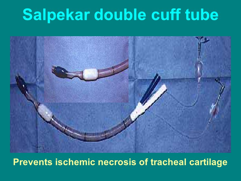 Salpekar double cuff tube Prevents ischemic necrosis of tracheal cartilage
