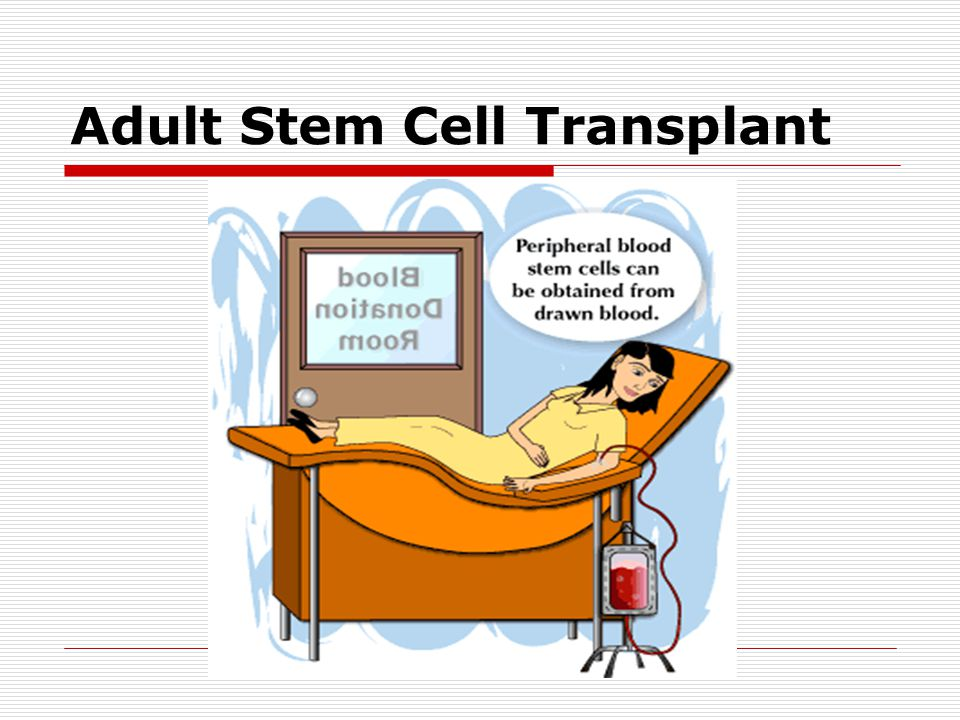 Adult Stem Cell Transplant