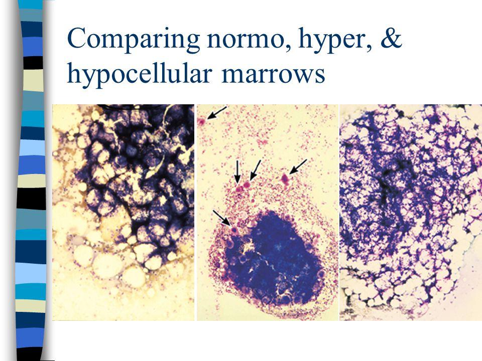Comparing normo, hyper, & hypocellular marrows