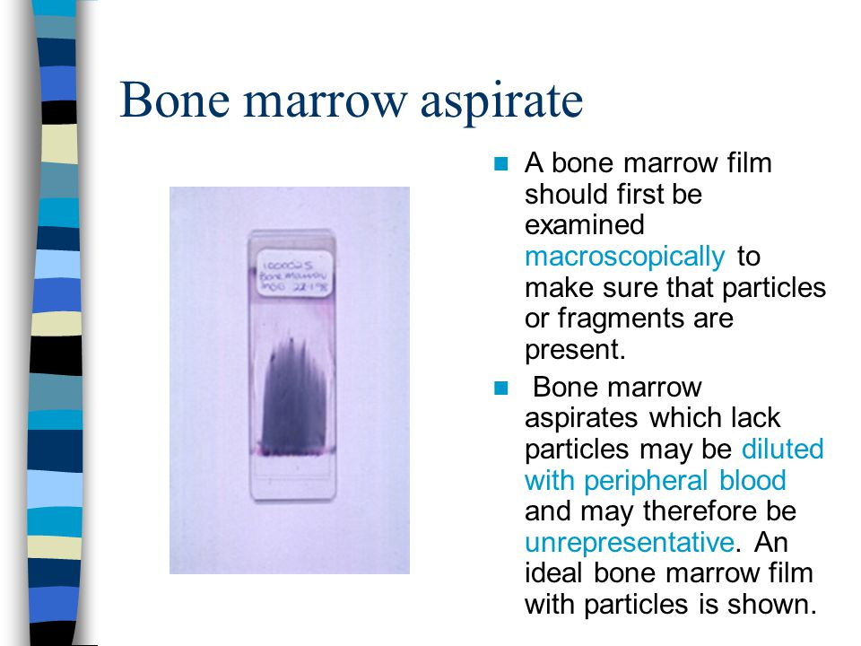 Bone marrow aspirate A bone marrow film should first be examined macroscopically to make sure that particles or fragments are present. Bone marrow asp