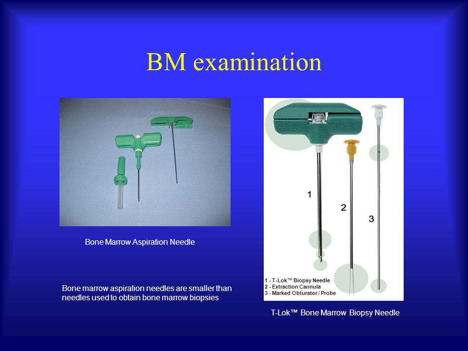 T-Lok™ Bone Marrow Biopsy Needle Bone Marrow Aspiration Needle Bone marrow aspiration needles are smaller than needles used to obtain bone marrow biopsies BM examination 1 - T-Lok™ Biopsy Needle 2 - Extraction Cannula 3 - Marked Obturator / Probe
