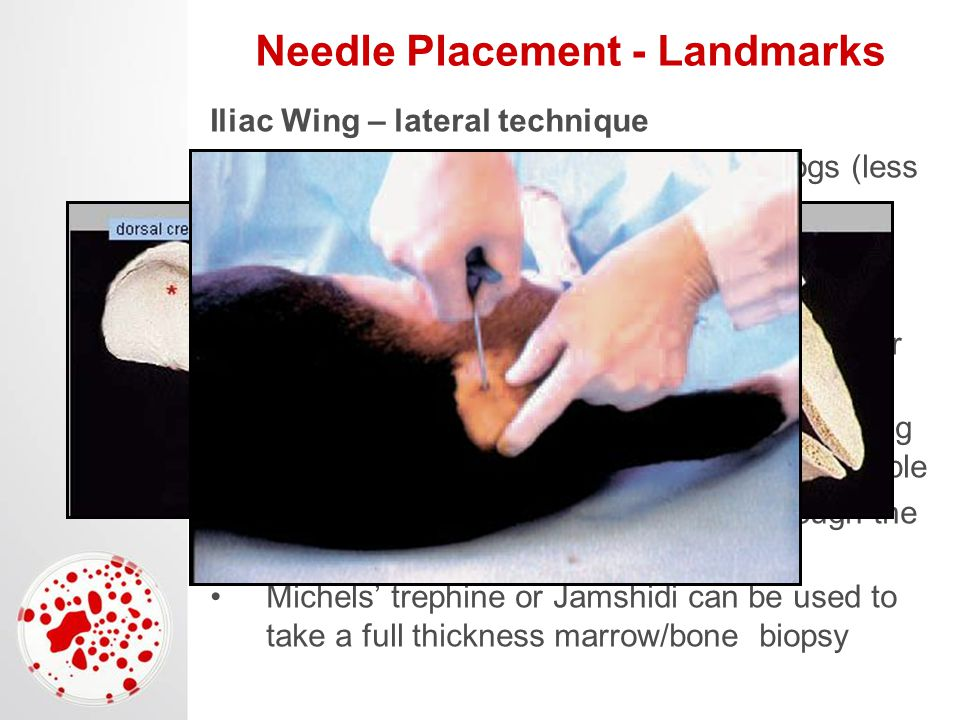 Needle Placement - Landmarks Iliac Wing – lateral technique Not recommended for cats or small dogs (less than 25 lbs) Lateral recumbency Palpate flat spot on the iliac crest Insert the needle 1-2 cm ventral to the center of the iliac crest Axis of the needle is perpendicular to the long axis of the ileum and perpendicular to the table Careful not to advance the needle through the opposite cortex Michels' trephine or Jamshidi can be used to take a full thickness marrow/bone biopsy