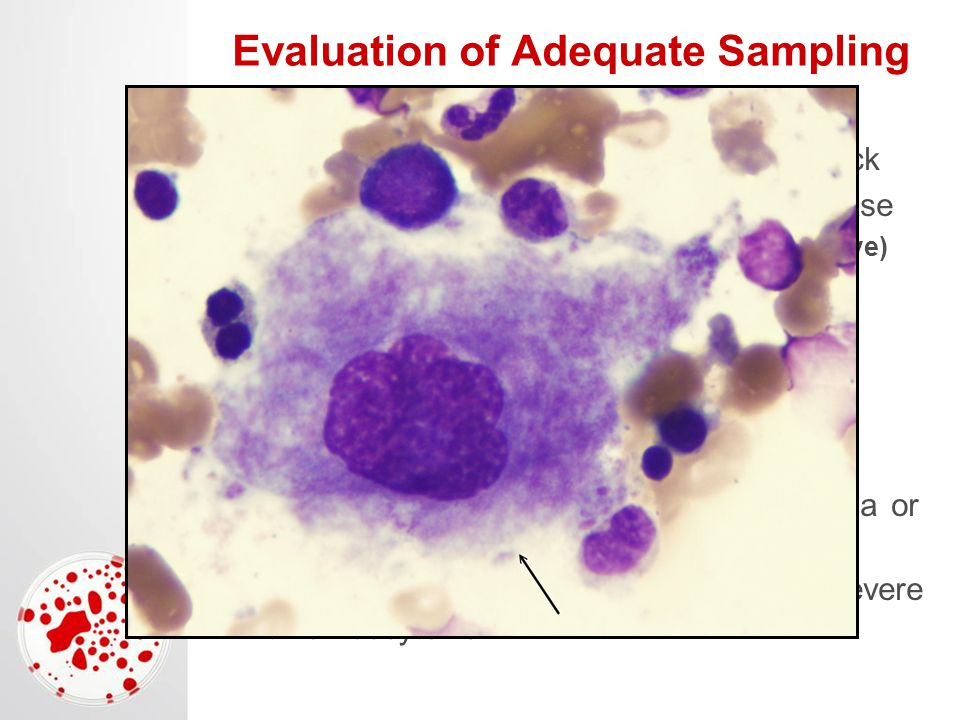 Evaluation of Adequate Sampling Iron stores (hemosiderin) Can see them reasonably well on DiffQuick Increased with chronic inflammatory disease –Anemia of chronic disease (non-regenerative) Decreased with chronic blood loss –Need iron supplementation Megakaryocytes Scan at low power for large purple multi- nucleated (30-50) cells Increased if regenerative thrombocytopenia or iron deficiency Decreased if non-regenerative or acute severe thrombocytenia